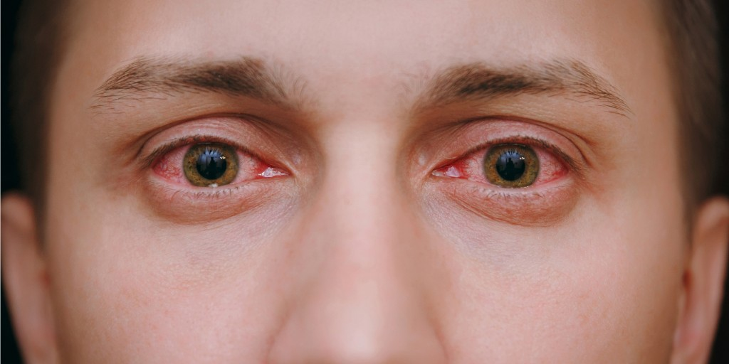 Red Eyes from Drinking